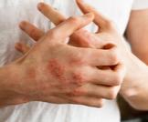 دليلك الشامل عن أنواع الأكزيما