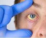التهاب القناة الصفراوية: تعرف عليه