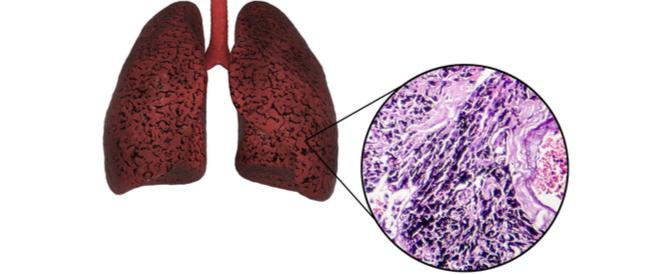 رئة المدخن: أمراض وحالات صحية يجب أن تعرف عنها