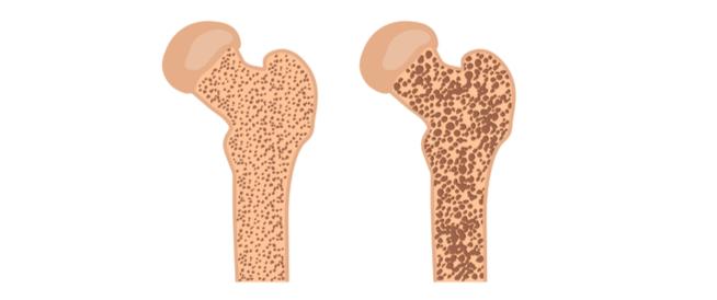 لين العظام: بين الأسباب والعلاج