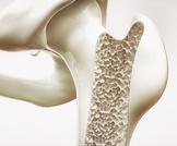 دليلك الشامل عن تسوس العظام