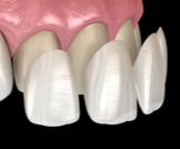 الفينير للأسنان