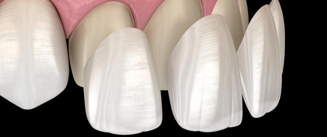 الفينير للأسنان: دليلك الشامل