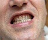 تغير لون الأسنان إلى الرمادي