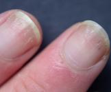 أسباب تقشر الأظافر وكيفية علاجها