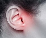 تسوس الأذن: أهم المعلومات