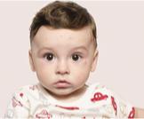 أسباب ظهور بقع بيضاء على الوجه للأطفال