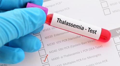 أنواع الثلاسيميا