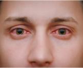 علاج احمرار بياض العين