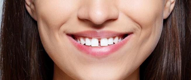 فراغات الأسنان: معلومات تهمك