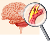ماذا بعد جلطة الدماغ؟