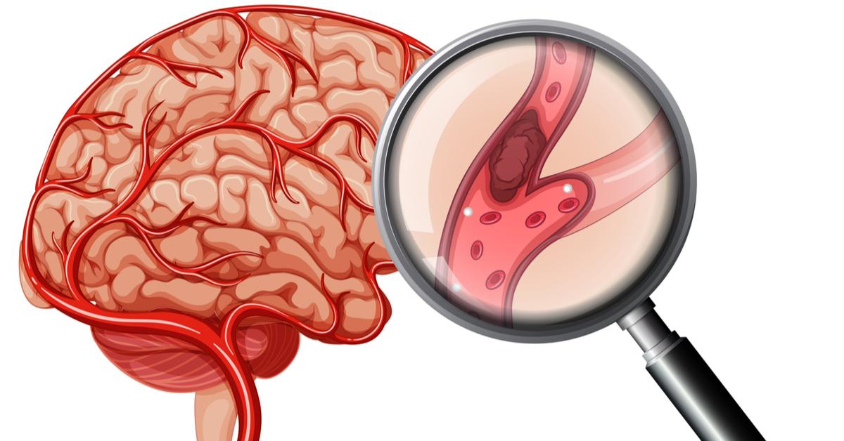 ماذا بعد جلطة الدماغ إليك التفاصيل ويب طب