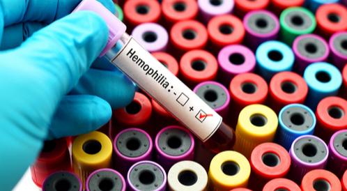 نزف الدم الوراثي (الهيموفيليا)