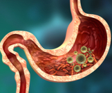 أعراض الالتهاب المعوي: تعرف عليها