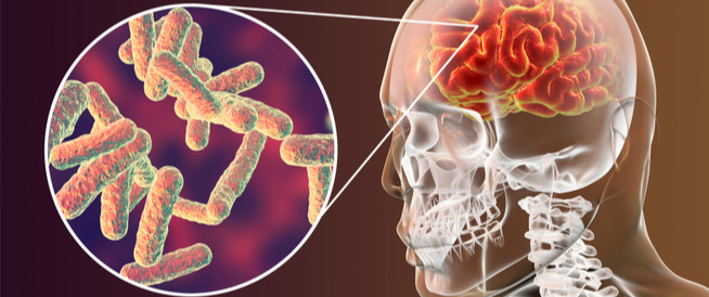 أسباب وأعراض الحمى الشوكية