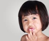 مدة مرض الجدري وكيفية العلاج