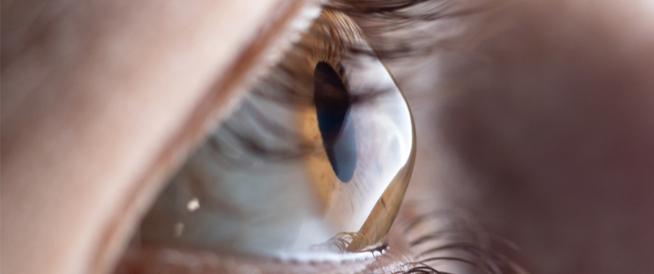 هل القرنية المخروطية تسبب العمى؟