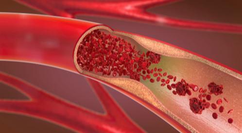 الفرق بين تصلب الشرايين وارتفاع ضغط الدم