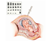 فحص الكروموسومات للجنين
