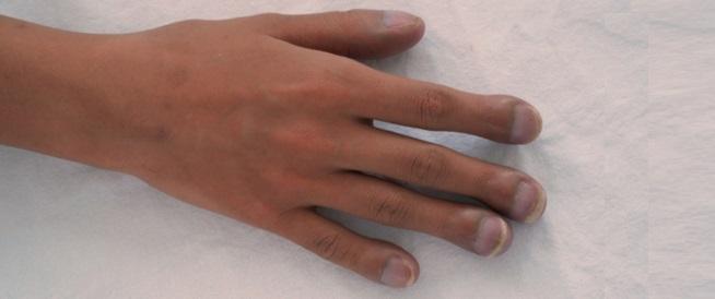 تعجر الأصابع: هل يعني إصابتك بمرض خطير؟