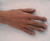 تعجر الأصابع