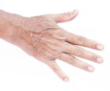 أسباب تجعد اليدين وكيفية العناية بها