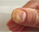 أسباب اصفرار الأظافر وكيفية علاجها