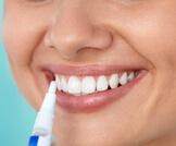 قلم تبييض الأسنان