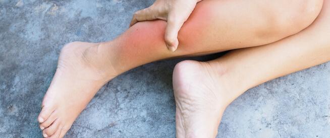 علاج التهاب الأوتار في القدم: دليلك الشامل