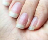 علاج تشقق الأظافر وأهم النصائح