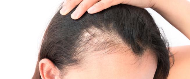 إنبات البيبي هير (شعر مقدمة الرأس)
