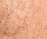 تساقط شعر الجسم: أسباب عديدة ومتنوعة