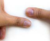 تغير لون أظافر القدم: ما دلالاتها
