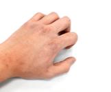 جفاف الجلد في الشتاء: نصائح تهمك