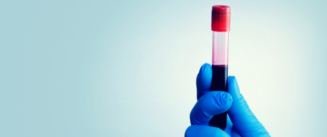 تحليل تخثر الدم: دليلك الشامل