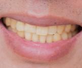 أسباب اصفرار الأسنان