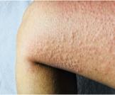 أعراض حساسية البرد وأبرز المعلومات عنها