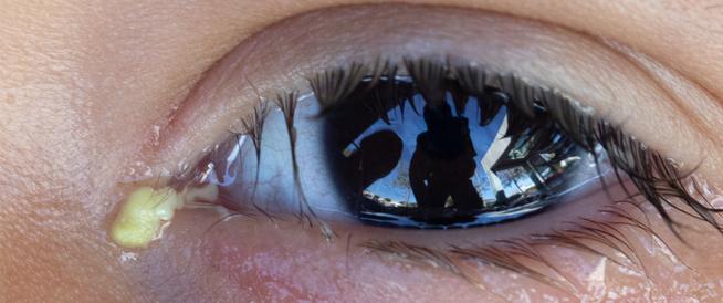 إفرازات العين البيضاء: كل ما يهمك أن  تعرفه عنها