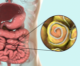 دورة حياة الدودة الدبوسية وكيفية علاجها
