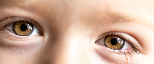 إفرازات العين عند الاستيقاظ: معلومات تهمك