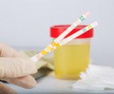 تحليل السكر في البول