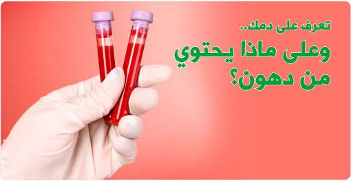 تصنيف الدهون في الدم
