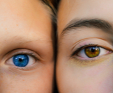 الميلانين في العين