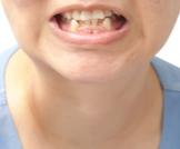 ازدحام الأسنان