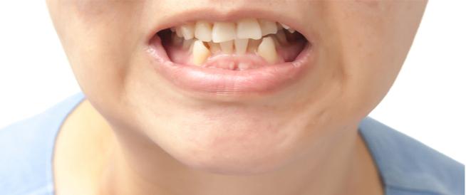 ازدحام الأسنان: مشكلة صحية تداركها قبل أن تتفاقم