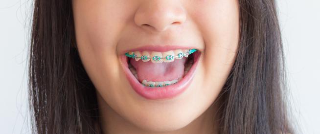 العمر المناسب لتقويم الأسنان
