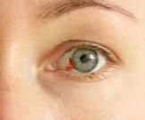 نزيف العين بسبب السكري