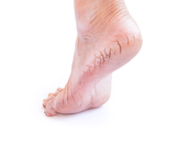 علاج تشقق القدمين بالخل: هل هو فعّال؟