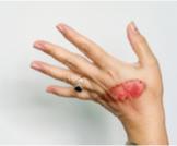 لون الجلد بعد الحرق: تغيرات وعلاجات