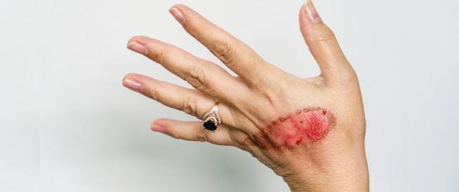 لون الجلد بعد الحرق تغيرات وعلاجات ويب طب